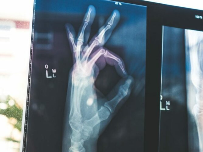 Xray of hand showing OK - What is Critical Illness Insurance?